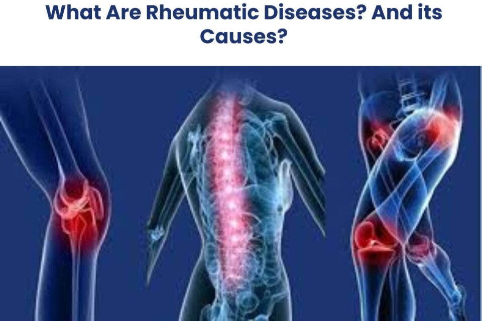 What Are Rheumatic Diseases? And its Causes?